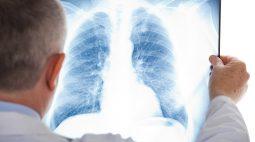 За неделю почти 2 тысячи курян заболели внебольничными пневмониями
