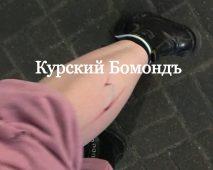 В центре Курска чипированная собака покусала девушку
